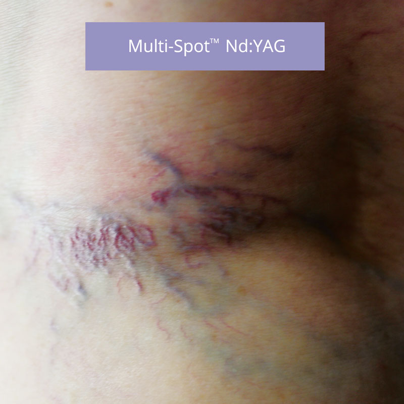 multi-spot-ndl-before