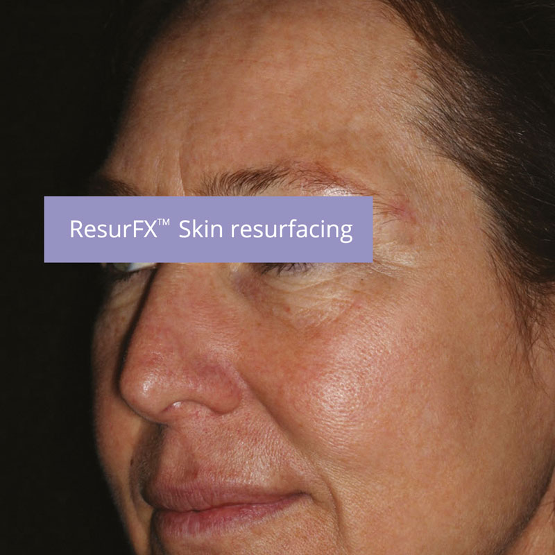 skin-resurfacing-after