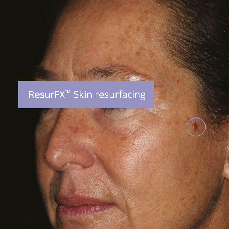 skin-resurfacing-before